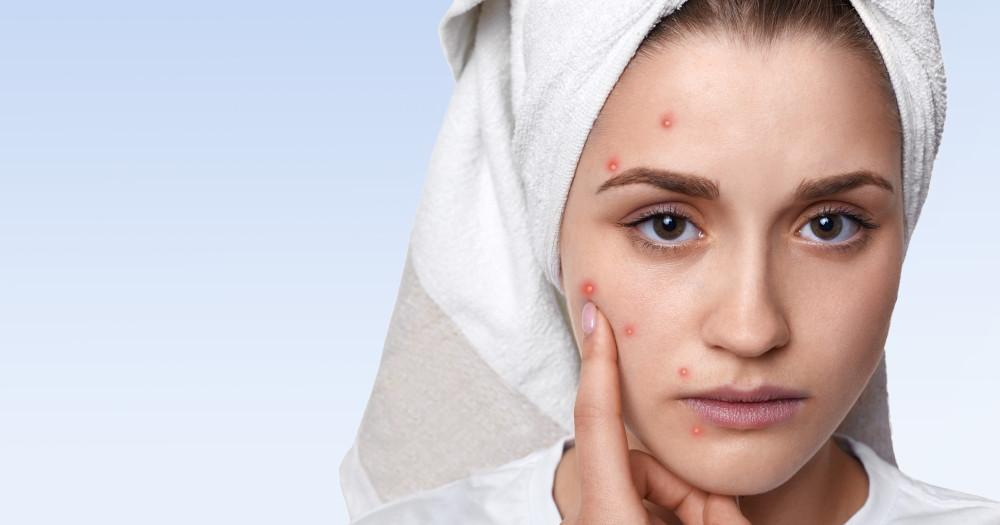 Get rid of acne and pimples