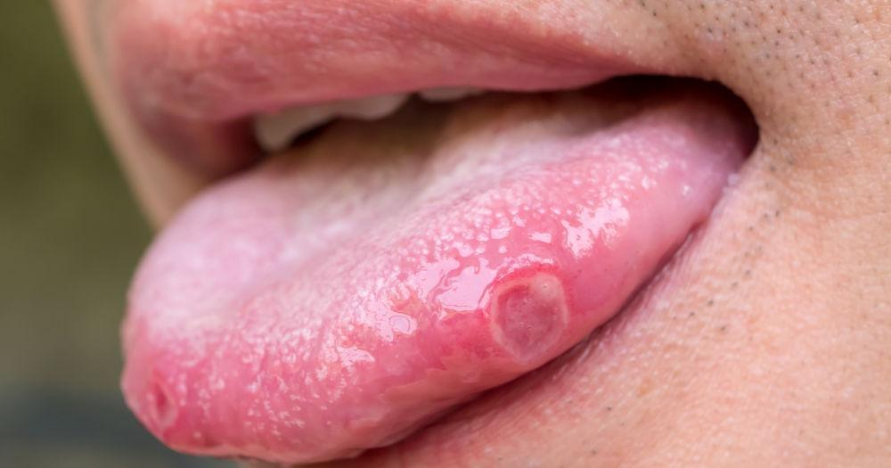 It aids in ulcer prevention
